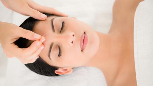 Tratamiento facial reafirmante con acupuntura