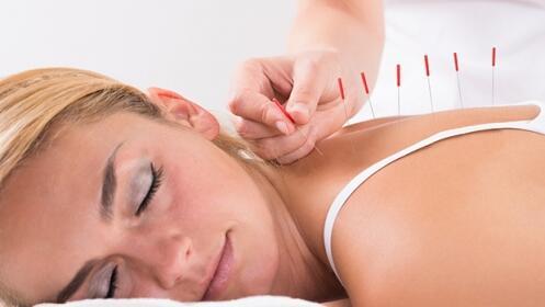 2 sesiones de acupuntura. Adelántate a los efectos de la primavera
