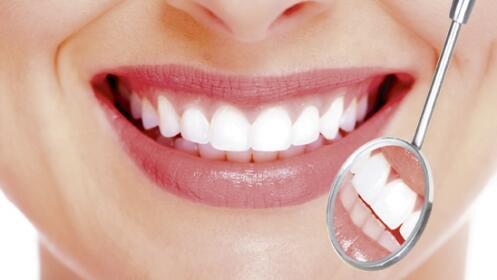 Blanqueamiento LED y limpieza bucal con ultrasonidos. Opción lápiz blanqueador para casa