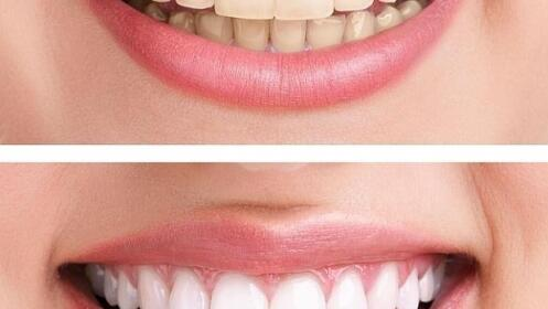 Blanqueamiento dental con Luz LED. ¡Reduce hasta 6 tonos el color del diente!