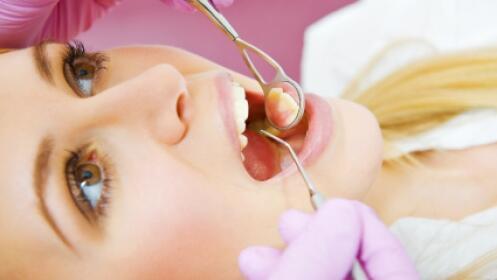 Higiene dental completa con ultrasonido y air-flow